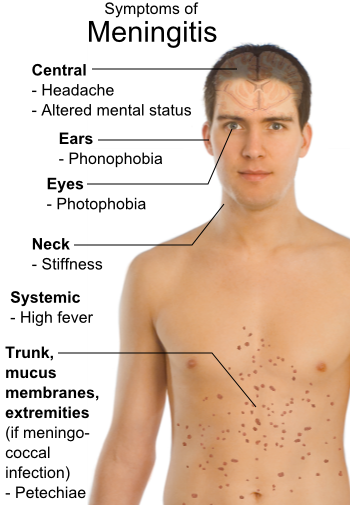 How to Recover From Meningitis